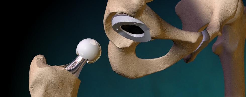Травматология и ортопедия фото
